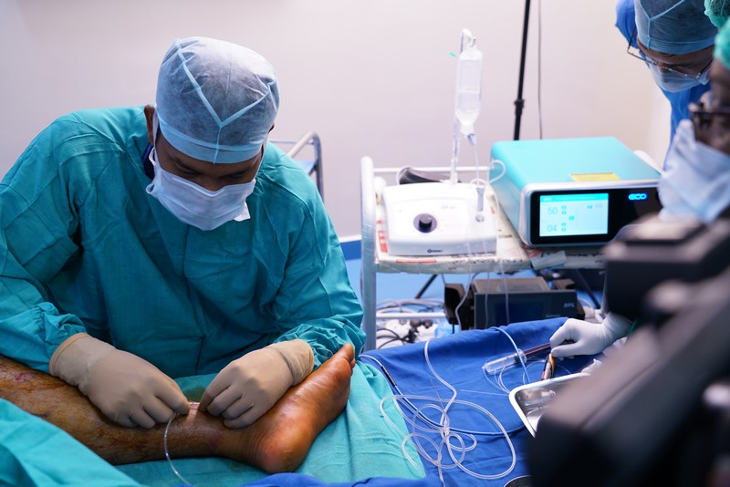 microwave ablation for varicose veins